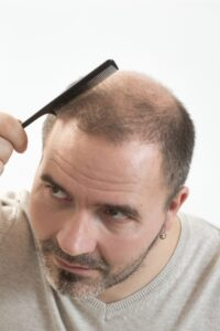 Signs for Hair Transplant Surgery by Virginia Surgical Center