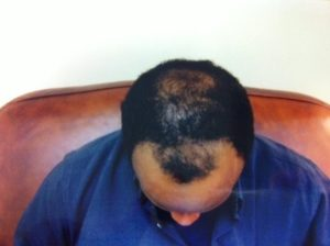 Dense Packing Hair Transplant by Virginia Surgical Center