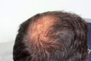 Trichophytic Closure for Hair Transplant at Virginia Surgical Center