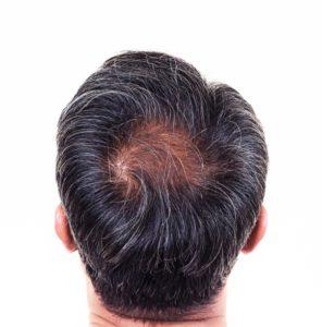 Hair Restoration Procedures at Virginia Surgical Center
