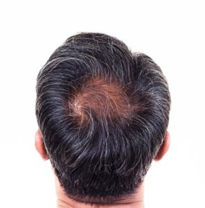 Hair Restoration Procedures at Virginia Surgical Center