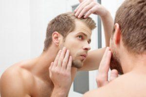 Hair Loss Treatment at Virginia Surgical Center