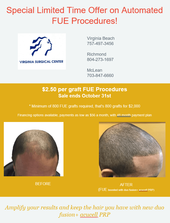 Special Offer on Automated FUE Procedures from Virginia Surgical Center